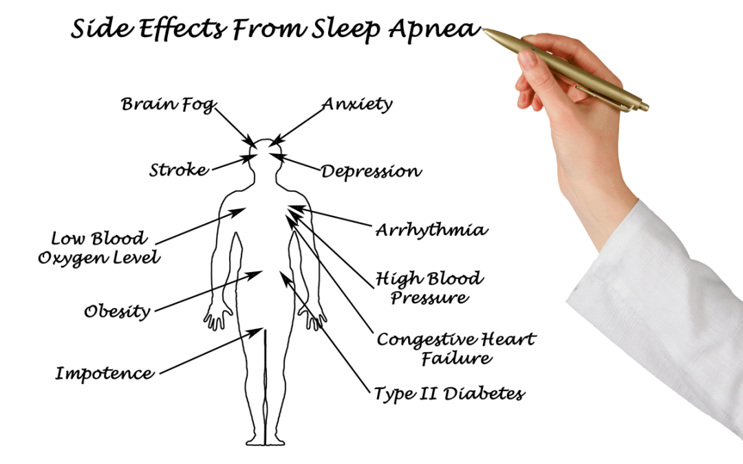 How Much Does Sleep Apnea Actually Cost Us?