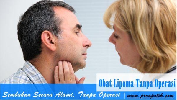 Obat Lipoma Tanpa Operasi