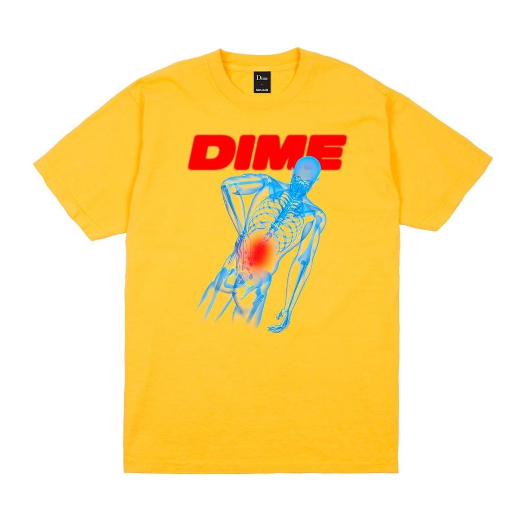 Dime Back Pain T-Shirt - Gold | T-Shirt by Dime MTL 1