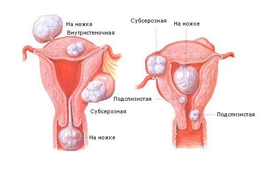 Фіброма матки: причини, симптоми, лікування