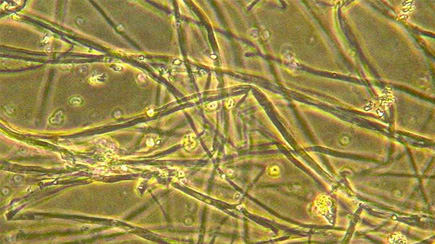 Pleurotus ostreatus hyphae at 100x magnification