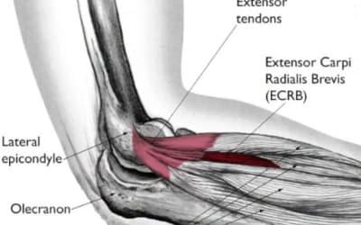 Preventing tennis elbow