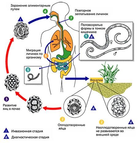 Аскариди - причини, ознаки, симптоми і лікування