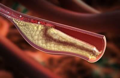 7 Cara Menurunkan Kadar Kolesterol