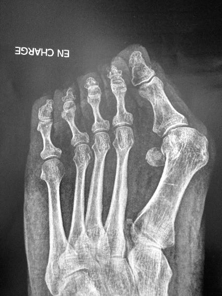 Dr Giovany Padiolleau, Chirurgien orthopédiste à Saint ...