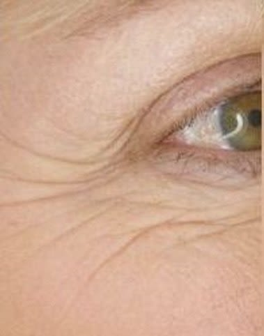 Crows feet wrinkles around the eyes