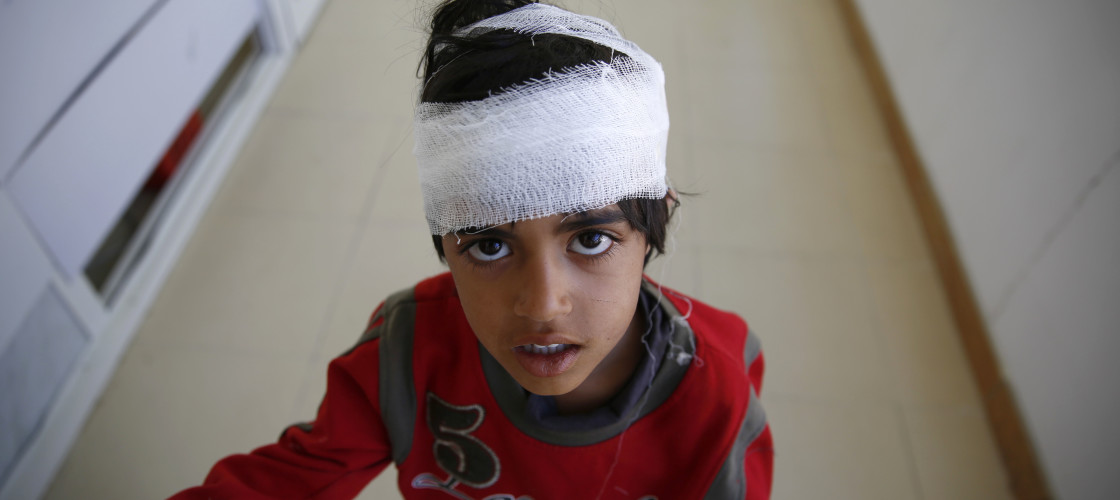A Yemeni boy who was injured by a Saudi-led airstrike, stands at a hospital in Sanaa, Yemen