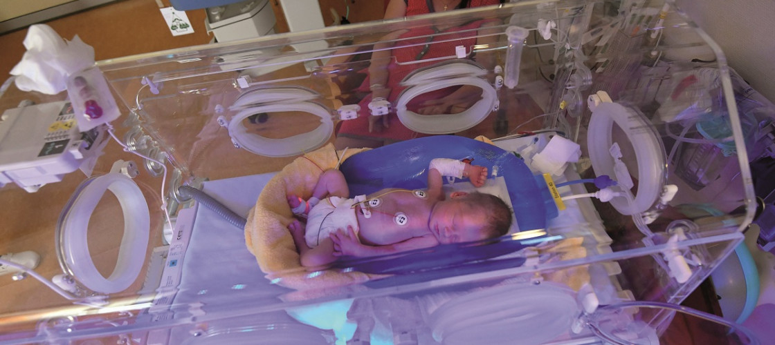 A premature baby lies in an incubator