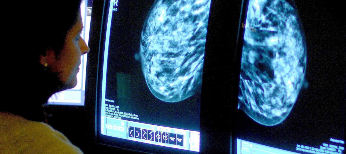 Consultant analysing a mammogram