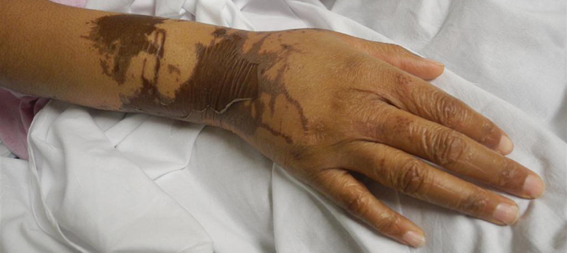 The hand of a woman which has been burnt in an acid attack