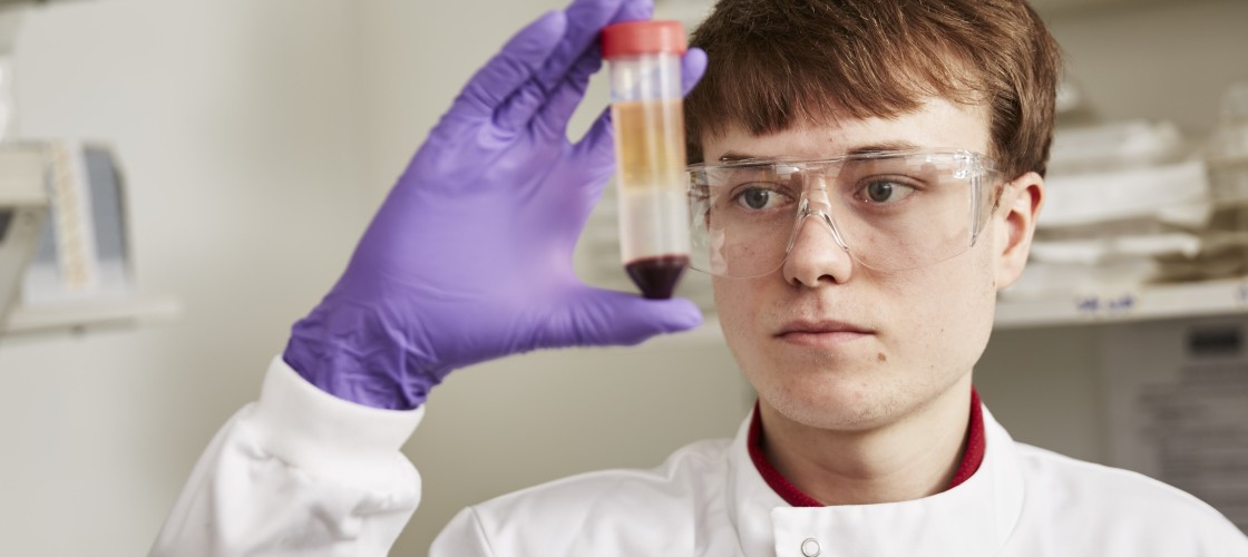 research, science, lab, blood, cancer