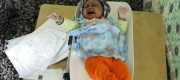 A cholera infected baby cries out in Yemen