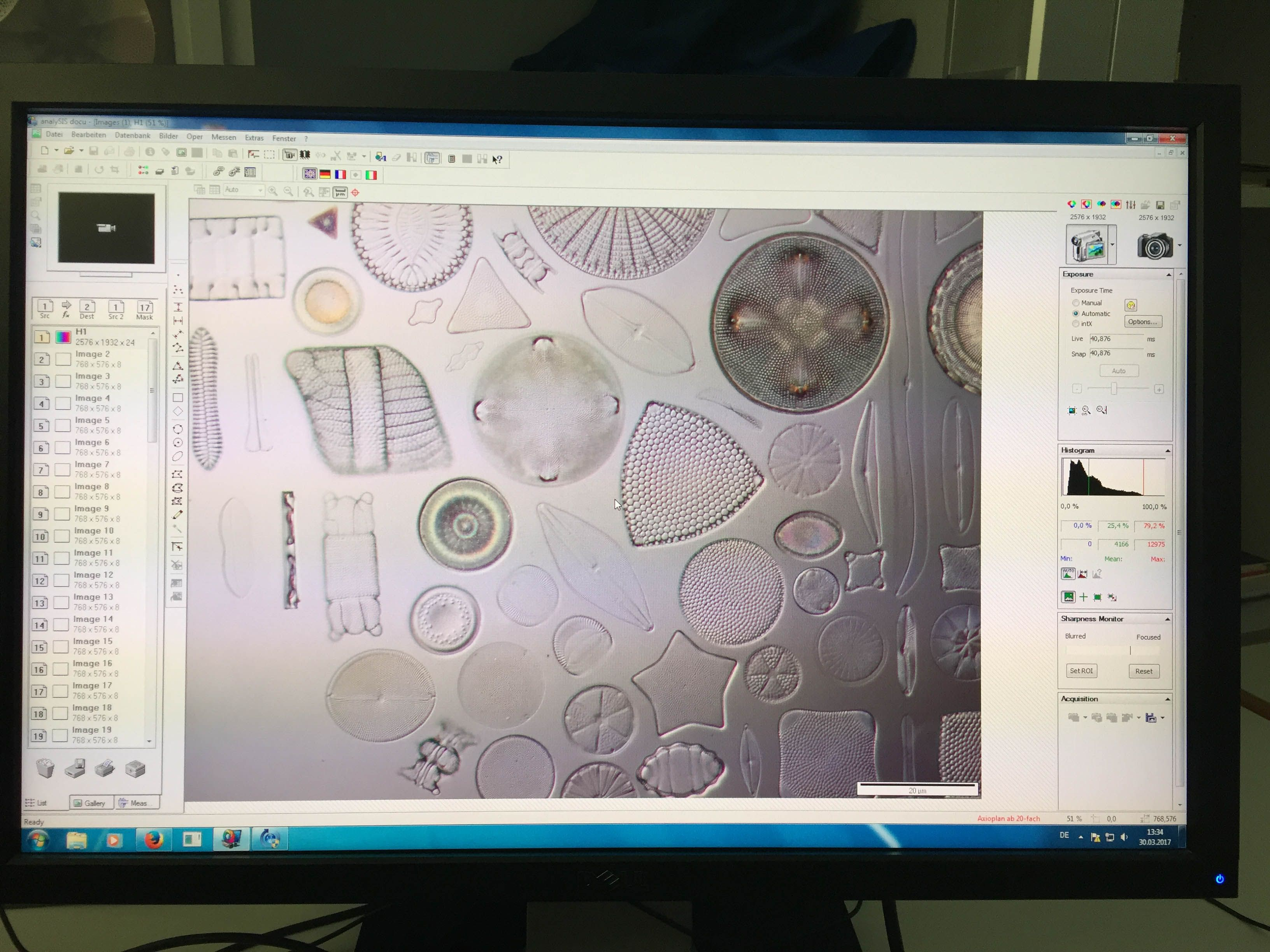 diatoms under the microscope