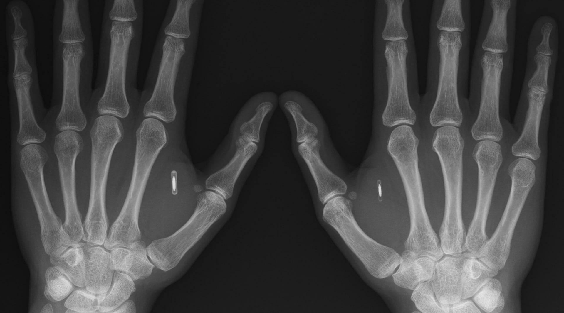 WEB 2006 03 30 Hands