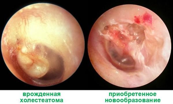 Холестеатома вуха: види, причини, симптоми і лікування