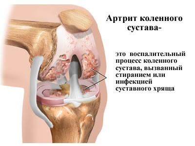 Артрит: види, причини, ознаки, симптоми і лікування