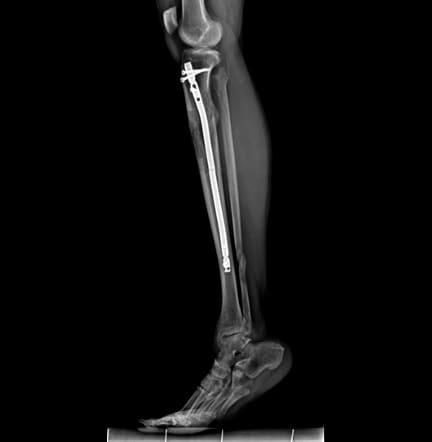 fibula shows minimal interval healing.