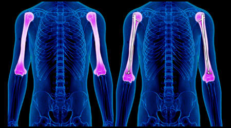 BILATERAL HUMERAL LENGTHENING (ARMS)