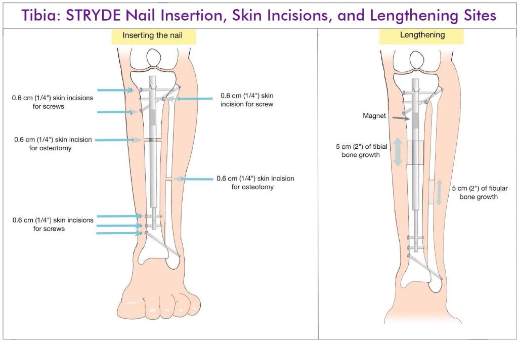 Tibia Lengthening with STRYDE