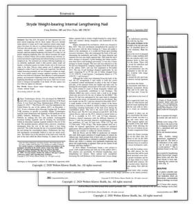 STRYDE WEIGHT-BEARING INTERNAL LENGTHENING NAIL