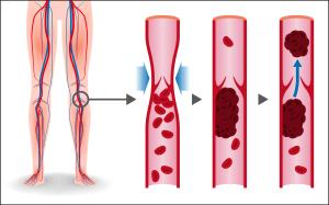 Deep Vein Thrombosis DVT 1