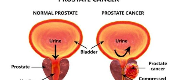 prostate cancer treatment in Noida