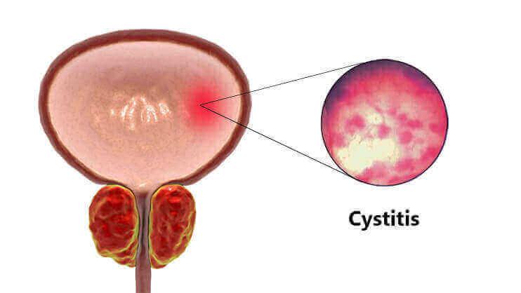 cystitis