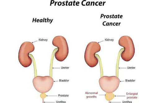 prostate-cancer-treatment-in-noida