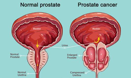 Prostate Cancer Treatment in Delhi