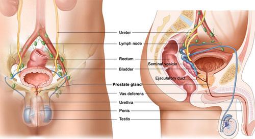 prostate-cancer-treatment-in-delhi