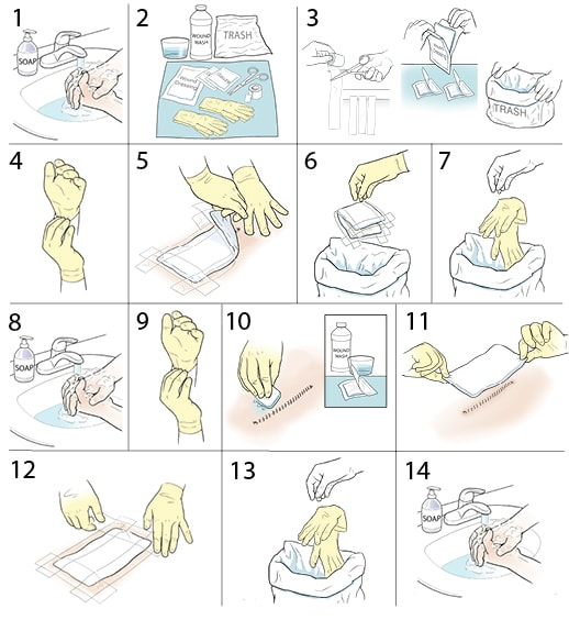 Instructions on changing a wound dressing