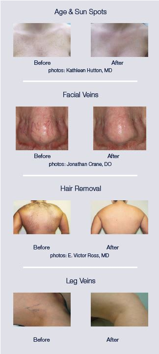 Laser Hair Removal And Skin Treatment | RiverView Health