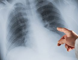 A person pointing at a x-ray of a chest.