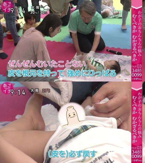 皮を必ず戻す むくべきか、むかざるべきか どうする? 息子のおちんちん NHKあさイチ