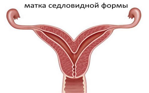 Сідлоподібна матка: симптоми, лікування, вагітність і зачаття