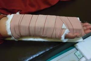 patah tulang tangan