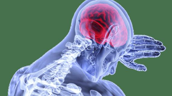 Pengobatan dan Perawatan Stroke