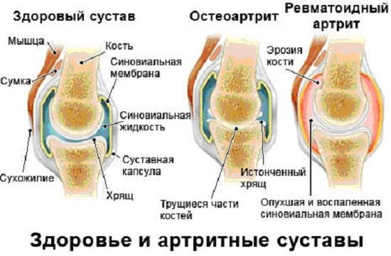Остеоартроз - причини, ознаки, симптоми і лікування