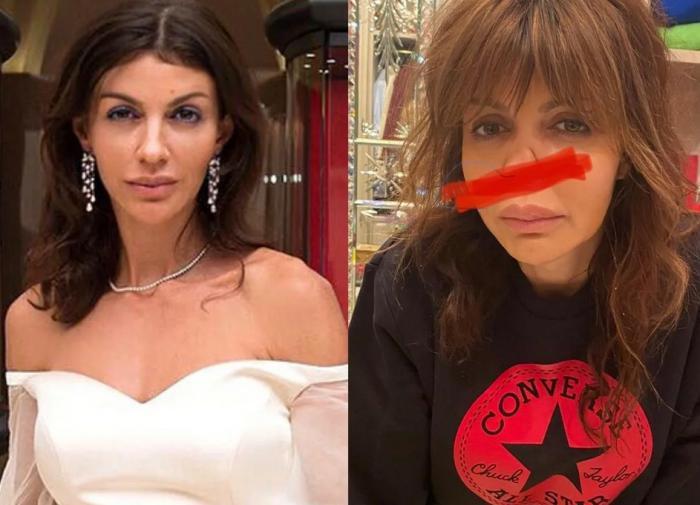 Алиса Аршавина заявила, что её нос могут и не восстановить