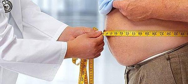 Male-obesity