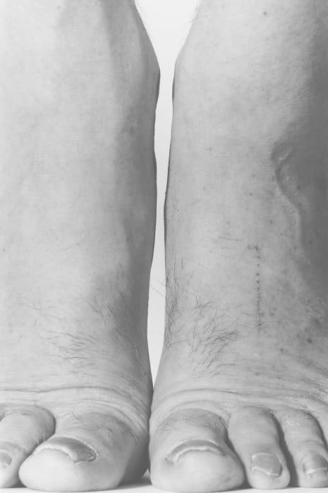 Self Portrait, Feet, Frontal by John Coplans