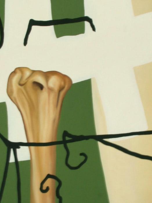 Nerve damage by Yoan Mudry