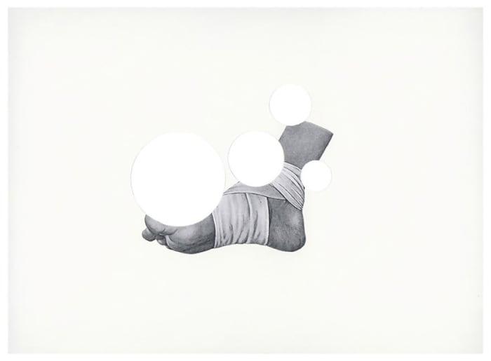 Bandaged Foot by Roman Ondak