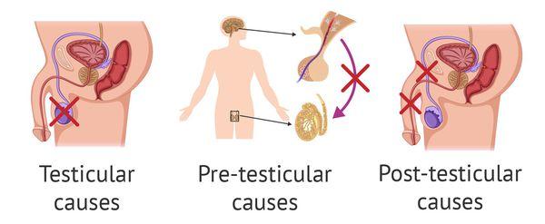 Пиоспермия: провоцирующие факторы, клинические признаки, методы обследования и лечения
