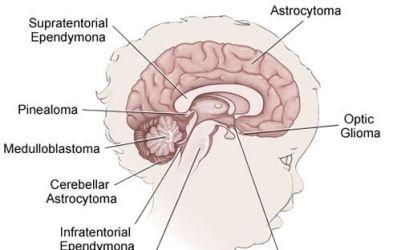 Brain Tumor and Spinal Tumor Program