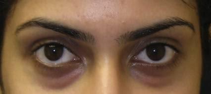 Dark eye circles—Blood vessel congestion around the eyes