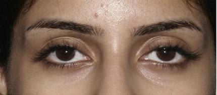 Dark eye circles—treatment result of Blood vessel congestion around the eyes