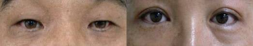 Dark eye circles—photo of eye bags caused by pigmentation
