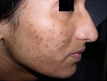 Hyperpigmentation photo for laser treatment
