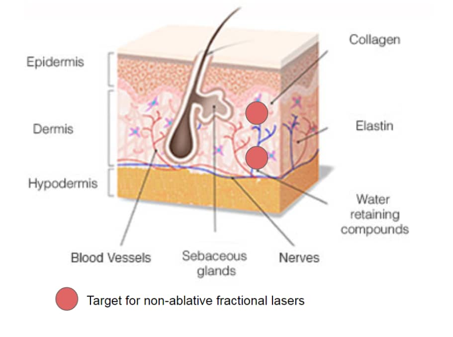 Non-ablative Fractional Resurfacing laser treatment